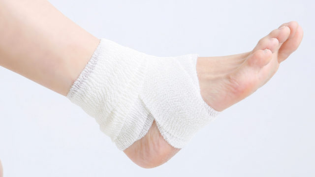 有痛性外脛骨による足首(内くるぶし)の痛みは インソールやサポーターで軽減できる。手術の必要はある?